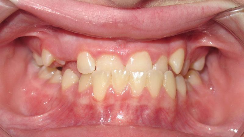 Kiara Feilburg, before braces, Marlo A. Miller DDS, orthodontist, Yukon OK